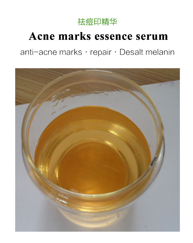 Best Acne Spots Treatment essence serum for Lighten melanin repair skin, oem anti acne blemish scars marks removal face serum